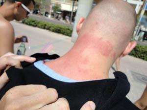 Allergien im Urlaub